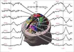 eeg_waveforms